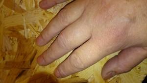 hævede fingre.. så det er Claus der må knokle.. så regner jeg den ud og pisker ham med tommelstokken :)